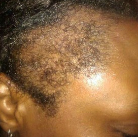 how to regrow your edges